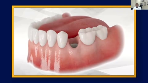 Socket Preservation with Bone Cement