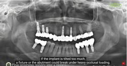 Lower Posterior Implant Placement on Narrow Ridge