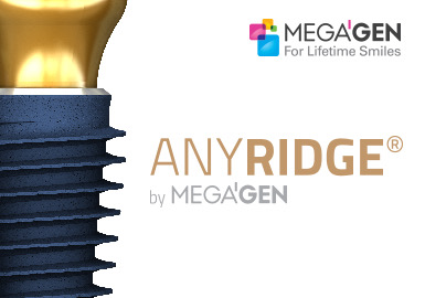 Megagen AnyRidge