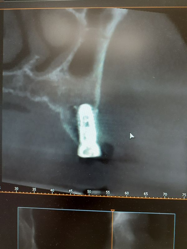 Implant place too buccal Image 872