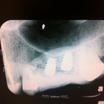 Placed Two Hi Tec Plus Implants and Have Issues with Primary Stability: Recommendations?