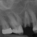 Options for #4 Implant?