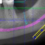 Implant in Recent Extraction Site of an Infected Fractured Molar: Most Predictable Procedure?