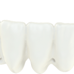 Immediate Smile bridge: Remove teeth, Place implants and fit bridges during same-day surgeries.