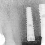 New Implant Patient: What do I do with all the extraneous bone particles?