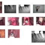 Straumann Implant failed after 7 years without any signs or symptoms?