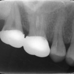 How should I manage this hopeless tooth?