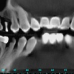 Adjacent Tooth Has Advanced Periodontal Disease: Keep It or Place Second Implant?