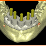 Case Report: Immediate loading of both upper and lower jaw in one visit