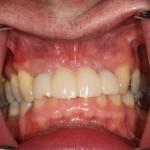 Cleaning below pontics for anterior implant bridge: feedback?