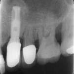 Adjacent teeth have advanced periodontal disease: recommendations?