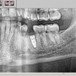 Implant very close to mesial root: long-term prognosis?