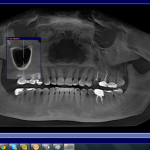 Nasal Inflamation after dental implant on #13: any ideas?