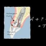5 Prosthetic Techniques to Enhance Anterior Implant Esthetics