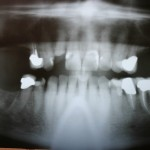 Implant restoration of a maxillary arch: Which option is better?