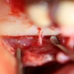 Accessory nerve: effect on the patient's sensory perception?