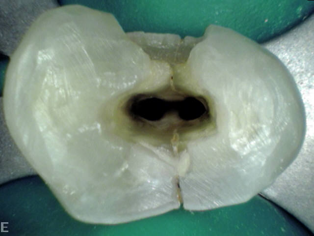 Close-up of Tooth#24, after pulpectomy and before placing CaOH dressing. To keep this tooth or not?