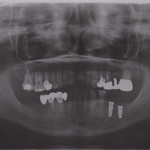 Dental Implant Becomes Mobile after removing temp crown: options?