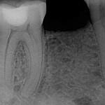 Nobel Replace Select Implants Broke at Crest: Best Options?