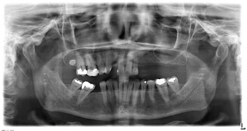 Pan-pre-implants