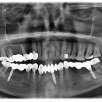 Teeth joined with implants resulted in open bite: which therapy?