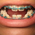 14 year old missing laterals:  When to place implants?