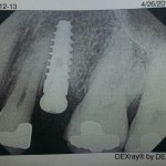 Implant too close to adjacent tooth: how best to proceed?