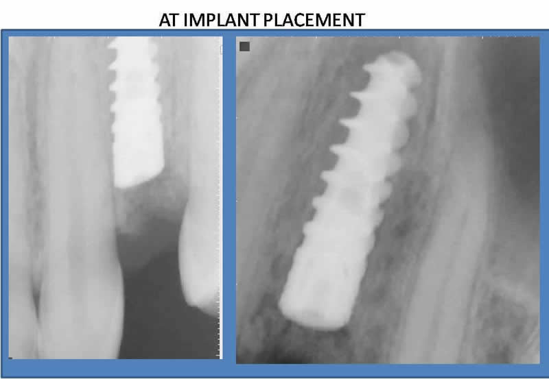 At Implant Placement