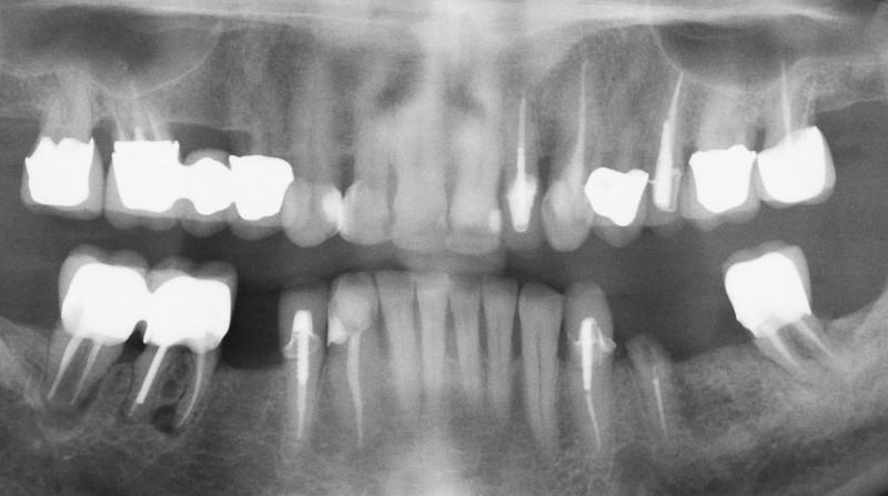 Pre-implant panorex