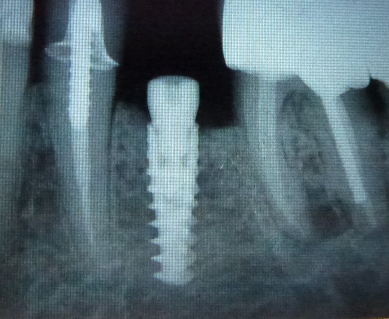 Single lower implant right