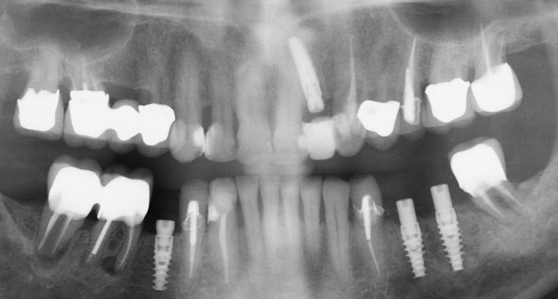 Post-implant panorex