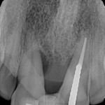 Best approach for anterior case?