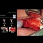 Predictable Techniques to Overcome the Mandibular Narrow Ridge