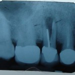 Vertical fractures and implant placement: feedback?