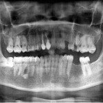 Can I do an implant for upper left premolar?