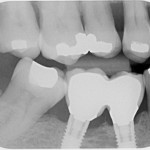 Infection and Bone Loss around implant: best course of action?
