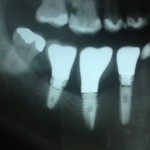 Patient from Brazil: which brand of dental implants is this?