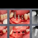Optimal Implant Selection and Positioning