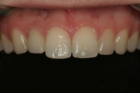this picture was taken 5 years after initial delivery of this screw retained implant crown.  #10 is a porcelain veneer.