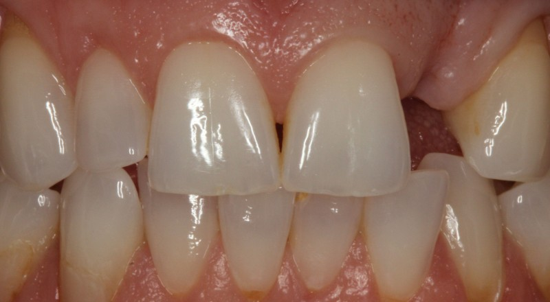 Missing tooth, soft tissue deficeincy.