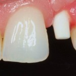 Case Presentation: CeraRoot 12 zirconia implant replacing tooth #22