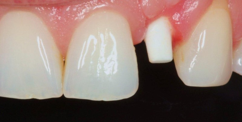 Soft tissue maturing, implant is integrated and in ideal position.