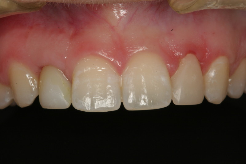 this is immediately placed screw retained implant fixed provisional crown 6 months after initial placement.  I used the provisional crown to mold the gingival contour to ideal shape.