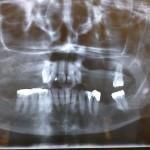Removable partial denture is no longer retentive: best options?
