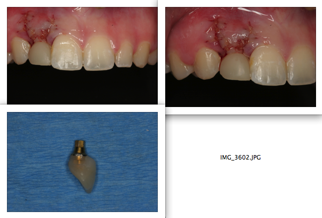 These photos shows how I intentionally under-contoured immediate provisional crown so that I will end up with excess soft tissue that I can use later to mold it into the ideal shape by changing the gingival contour of provisional crown.