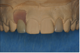 #7 is screw retained PFM implant crown and #10 is a porcelain veneer.