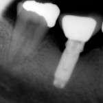 Compatible abutment for Anthogyr's Anthofit  implant?