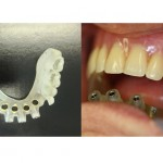 Case Presentation: Computer guided implant placement on severely atrophic mandibles