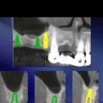 Extraction Socket Grafting: The Backbone of the Modern Dental Implant Practice