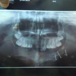 Massive trauma to mandible: treatment plan?